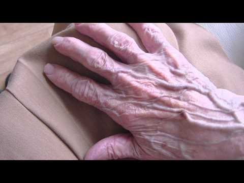 Welche Analysen bei atopitscheskom die Hautentzündung