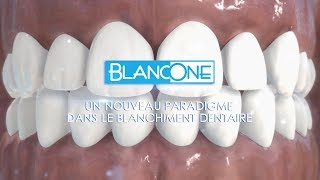 BlancOne réinvente le blanchiment dentaire (voiceover)