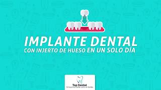 ¡Implantes dentales paso a paso! | Top Dental