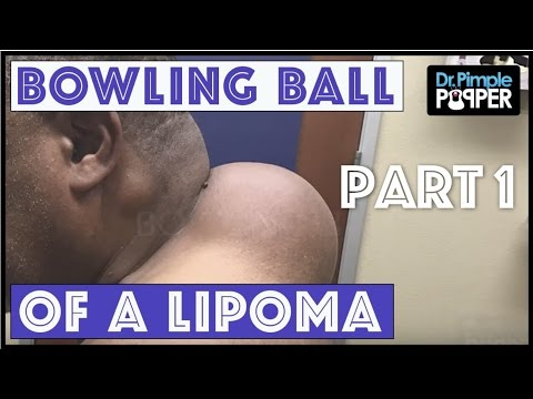Best Dr Pimple Popper Lipoma Videos All Fans Must Watch