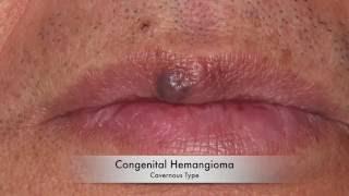 Removal of congenital heamgioma using Nd:Yag laser