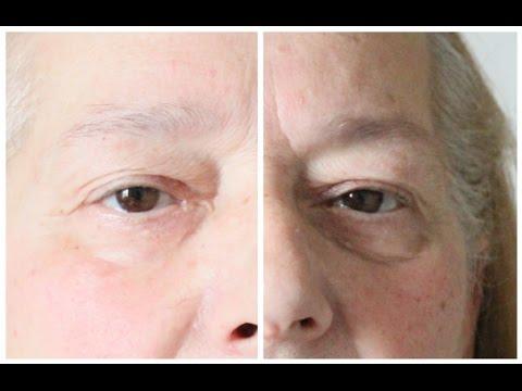 La faccia di ringiovanimento imballa la vitamina v12