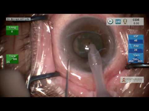 Skomplikowana operacja zaćmy przy wąskiej źrenicy.