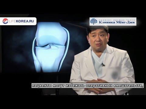 Лечение коленного сустава, госпиталь Мёнджи [LIFEKOREA - лечение в Южной Корее]