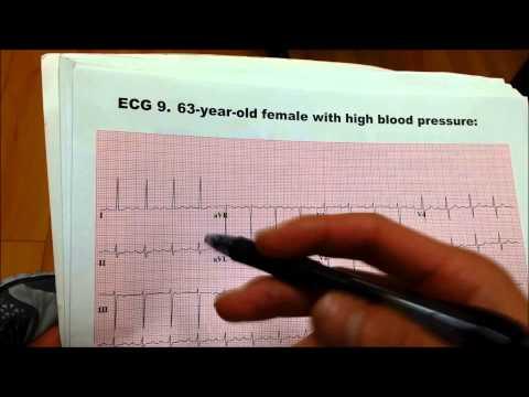 Cannelle dans le traitement de lhypertension