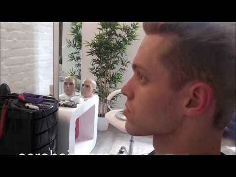 2 rodzaje łysienia