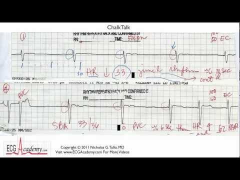 Interpretacja EKG - Poziom Podstawowy, Część 14.