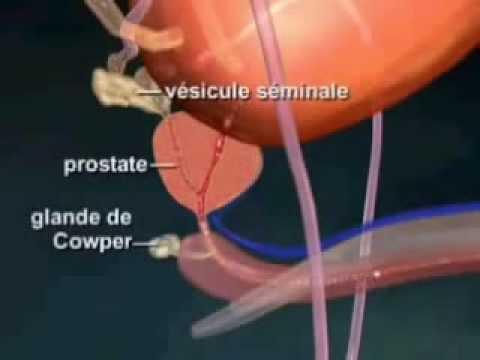 Comme la prostate affecte la qualité du sperme