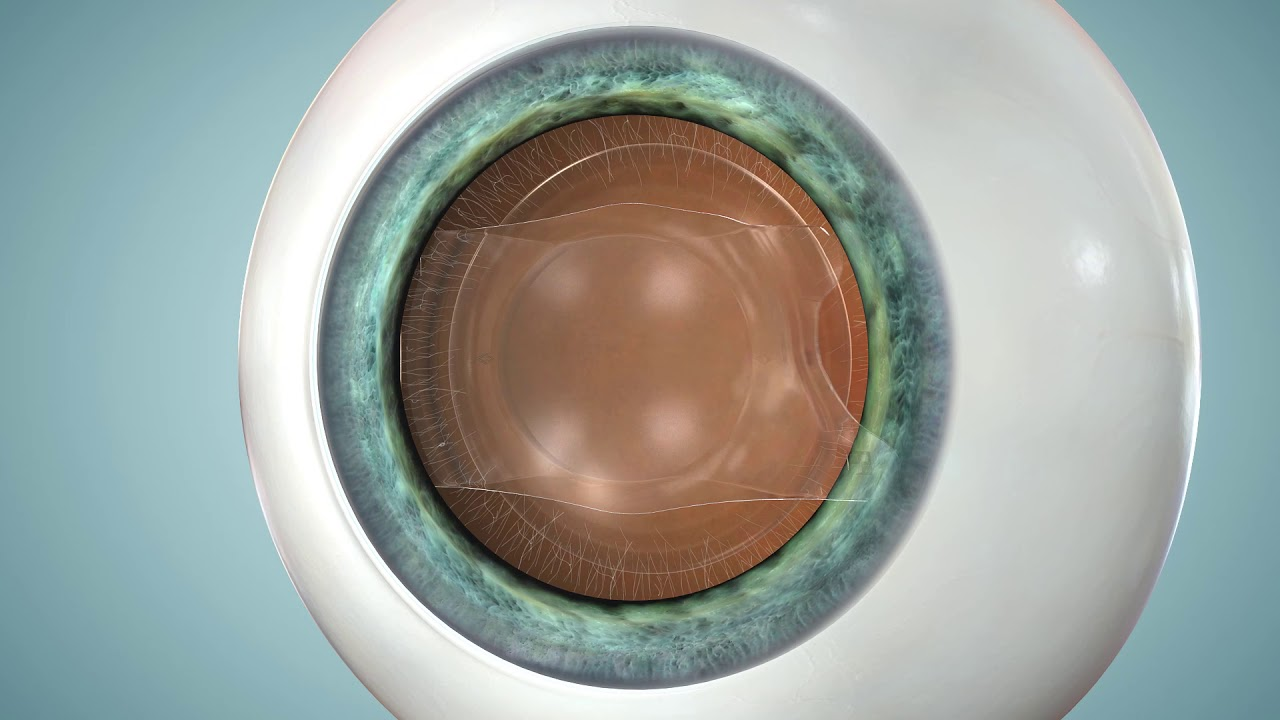 South Carolina Implantable Contact Lens