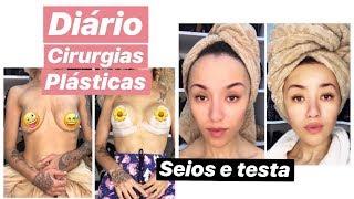 DIÁRIO DAS MINHAS CIRURGIAS - MASTOPEXIA COM SILICONE E TESTA