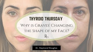 Why Is Graves' Disease Changing The Shape Of My Face? |  Dr. Raymond Douglas