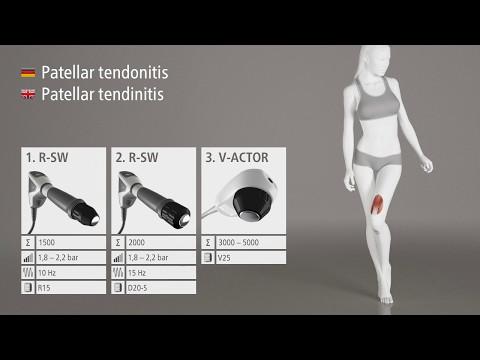 Сколько по времени длится операция по замене тазобедренного сустава в