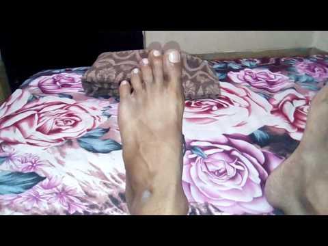 Les symptômes du thrombus dans le pied la varicosité