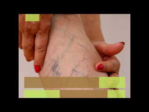 A láb zsibbadása visszeres műtét után