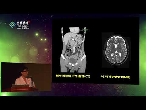 폐암의 최소침습수술