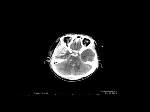 Head Trauma - Michael Todd, MD