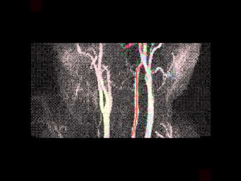 Osteochondrose der Zervikalnerven