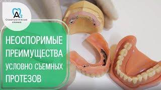 Протезы на имплантах. 😀 Почему стоит выбрать  условно съемные протезы на имплантах. 12+