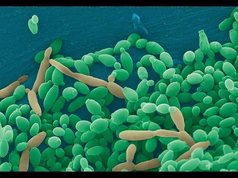 Medicina nella forma di una vernice per un fungo di unghie