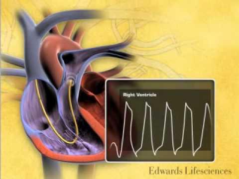 Provisión de primeros auxilios en la presión arterial
