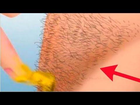 6 einfache Methoden, um unerwünschte Haare los zu werden!