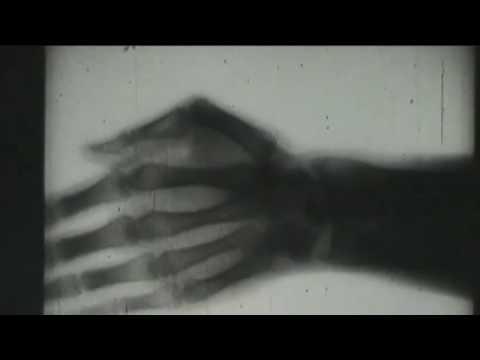Arthritis der kleinen Gelenke des Fußes