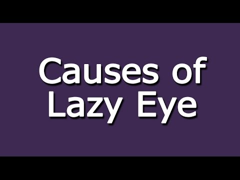 Video Causes of Lazy Eye