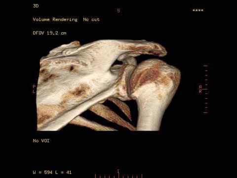 Thorakale Rückenmarkes Läsion