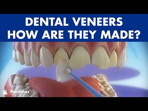 Veneers - How are they made? Preparation and placement of dental veneers