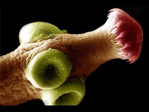 Die Würmer parasitierend in den Muskeln