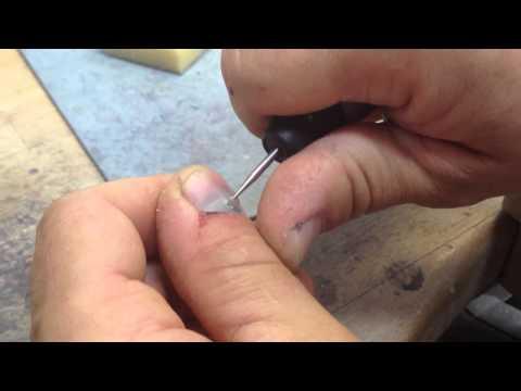 Wie die Schwiele unter dem Nagel auf dem Finger zu behandeln