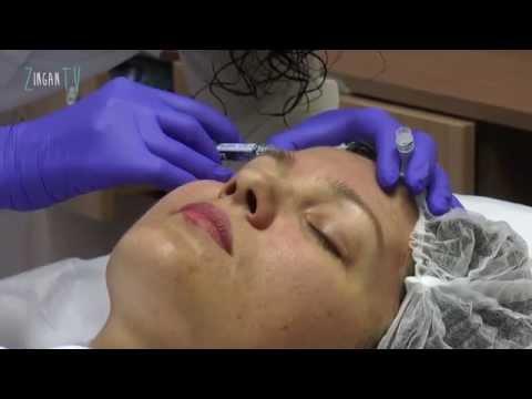 Cancer sarcoma de tejidos blandos
