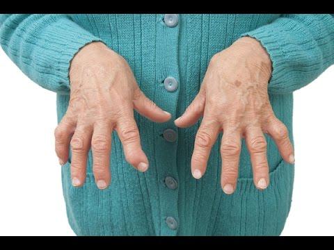 Mal di schiena nelladdome a sinistra dà