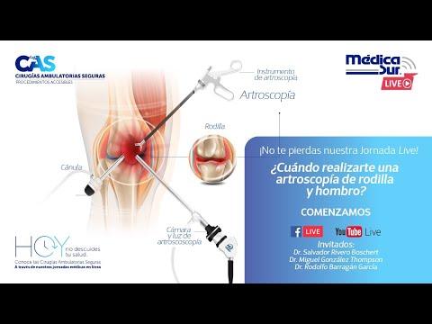 Artroza articulațiilor mari