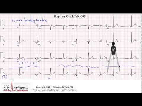 ECG Interpretation, Advanced Level - Part 8