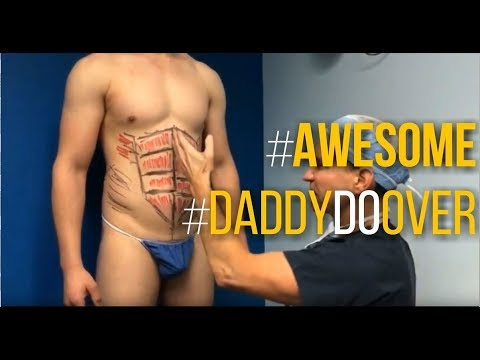 Daddy Do Over Surgery Which Includes Male Calf Implants, Gluteal Augmentation and Liposuction