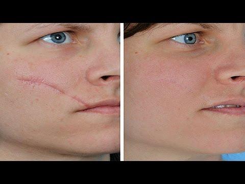 Das Jucken und die Pigmentation der Haut