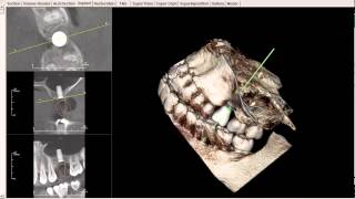Upper Molar/Internal Sinus Lift 3-D Scan Dental Implant Planning - Narrated by Ramsey Amin DDS