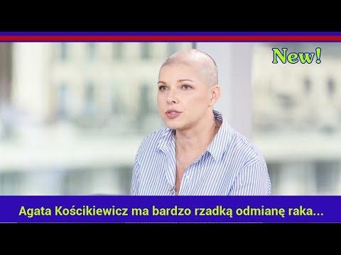 Kobiety patogen Ukraina