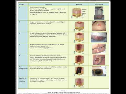 Les ulcères chroniques des jambes à la varice variqueuse