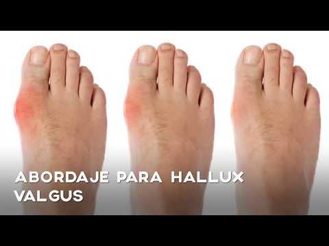 Valgus hallux ซื้อรองเท้า
