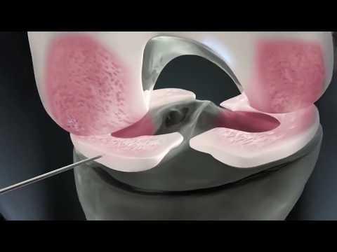 Torbiel szyjnego mózgu