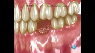 Perdidas de dientes. Clínica dental DeltaDent. Madrid. Implantes dentales.