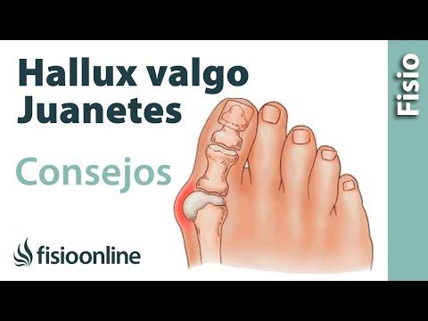 Valgus เท้า fizioprotsedury