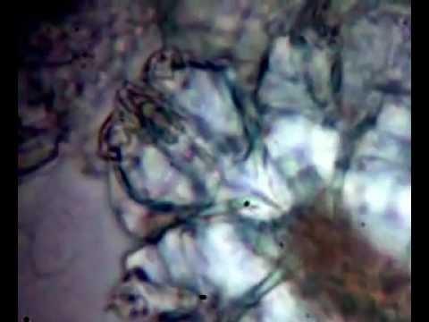 Die Salbe von den roten Flecken der Schuppenflechte