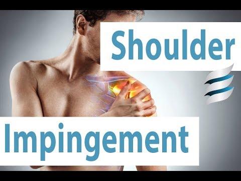 Cum să tratezi artrita incipientă