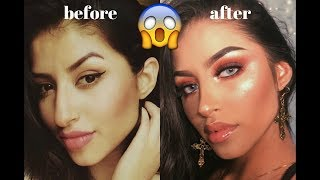 All about my nose job + recovery + BEFORE & AFTER pictures ♡ Michelle Diaz