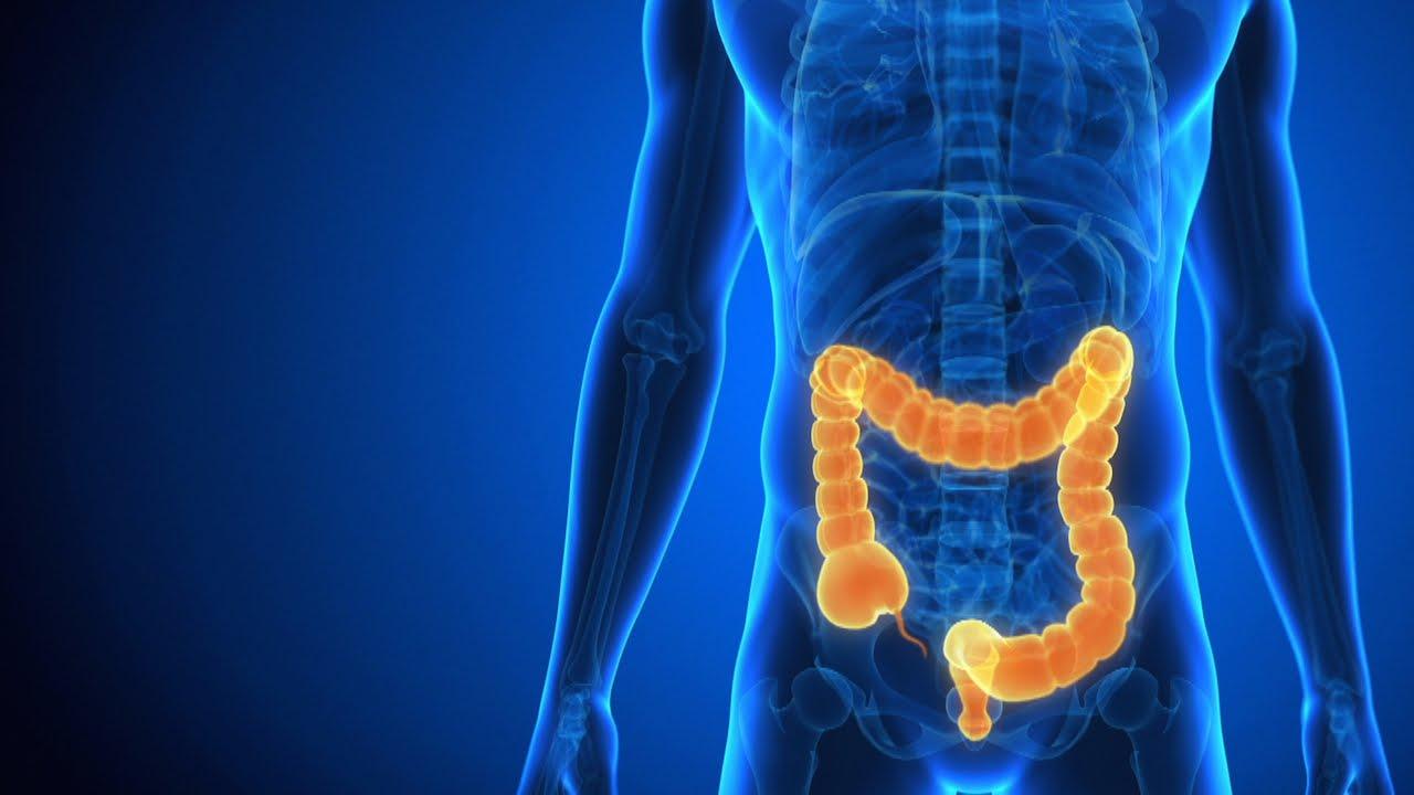 Eating Healthy with Crohn's Disease