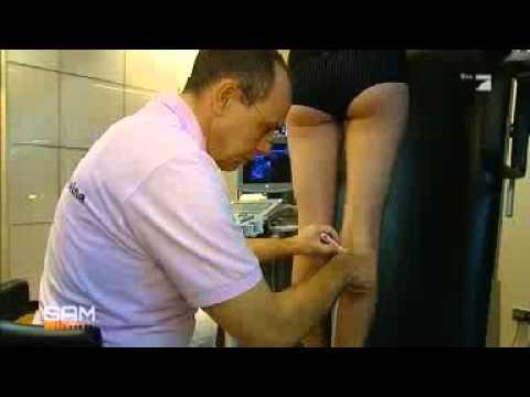 Die Abtragung Venen der Beine in den Bildern