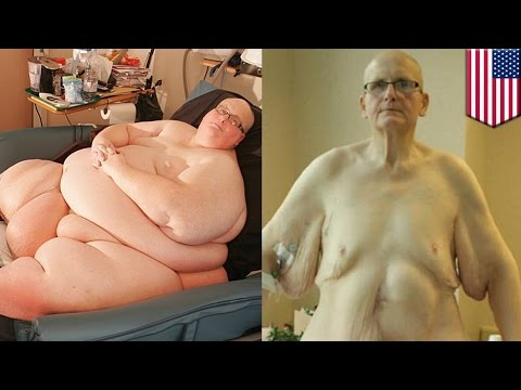 Po mammoplastyki squelching że piersi
